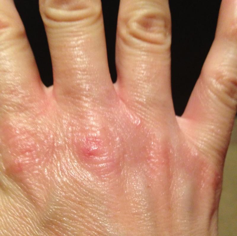 Лопается кожа на пальцах рук. Причины сухости кожи и лечение. Кремы и мази