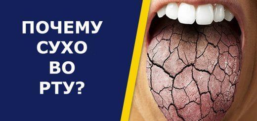 Почему сушит во рту – что делать?