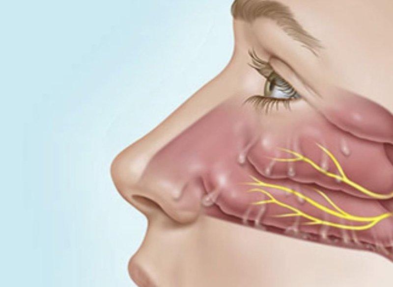 Почему из носа течет вода