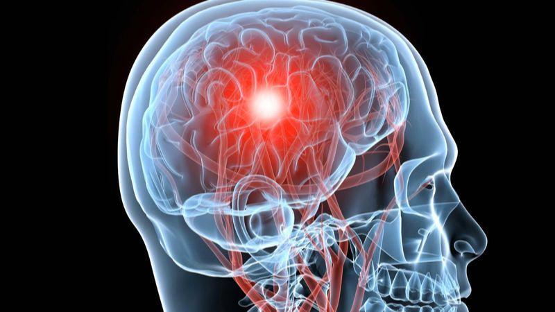 Травма головного мозга