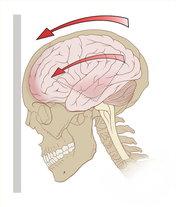 При сотрясении мозга как снять головокружение