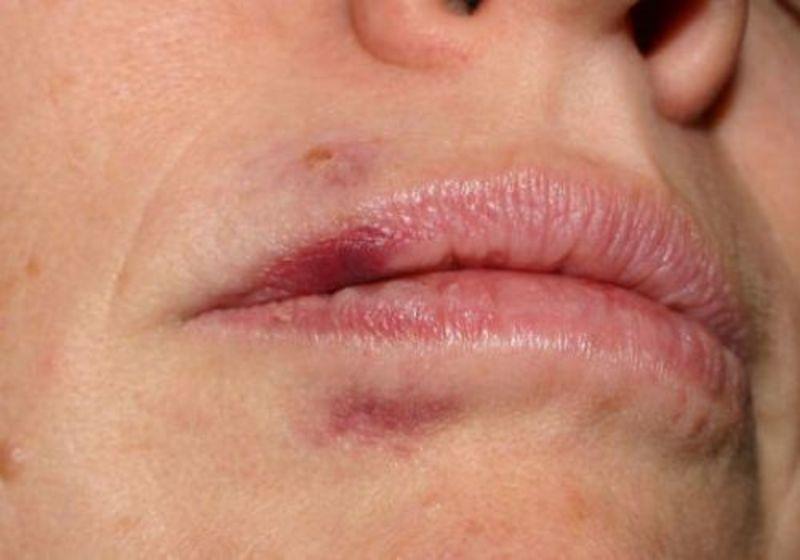 травма губы