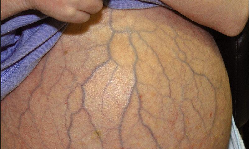 Венозная сетка при циррозе