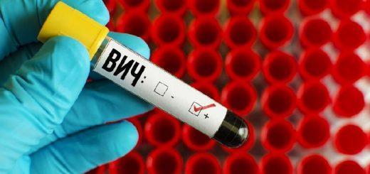 ВИЧ-инфекция – 20 симптомов у женщин