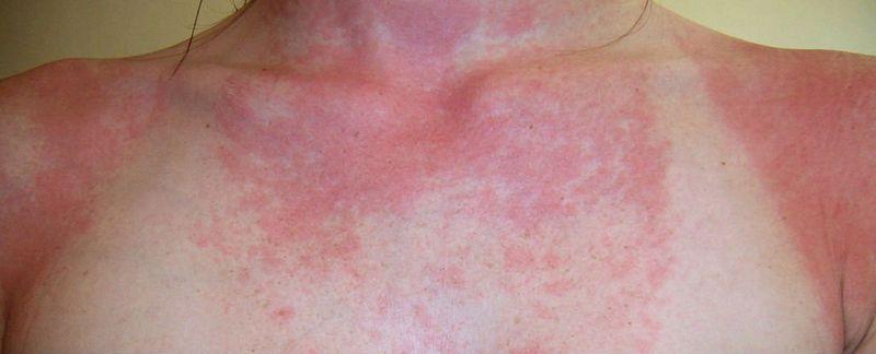 Вирус краснухи