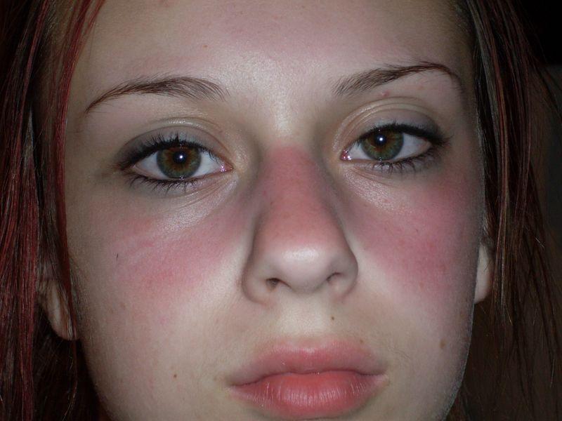 Волчаночная сыпь на лице