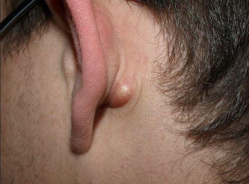 Воспаление лимфоузлов под ухом лечение