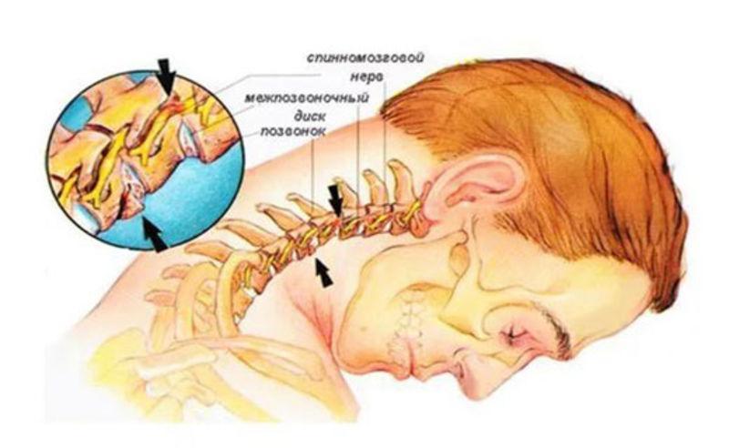 Спинномозговой нерв