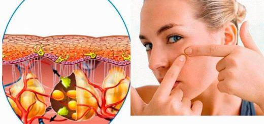 Почему появляются жировики на лице – как удалить?